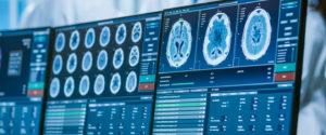 Mesures des modifications neuronales grâce à la Méditation Transcendantale